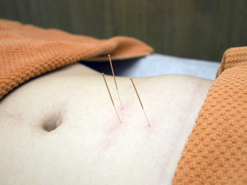 acupuncture-4175624_1280